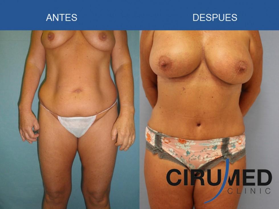 cirugia transformacion