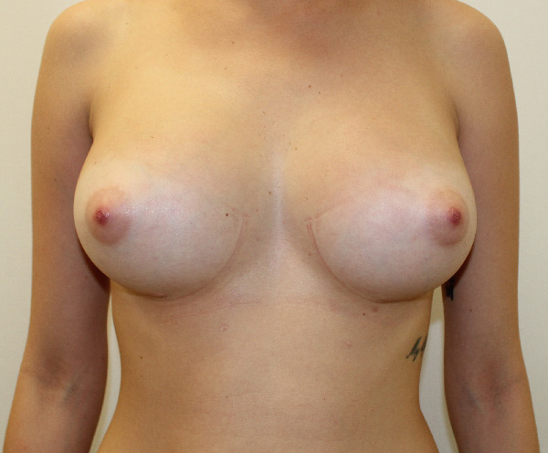 After-mamoplastia