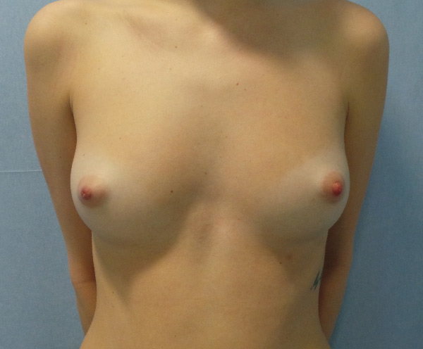 Before-mamoplastia