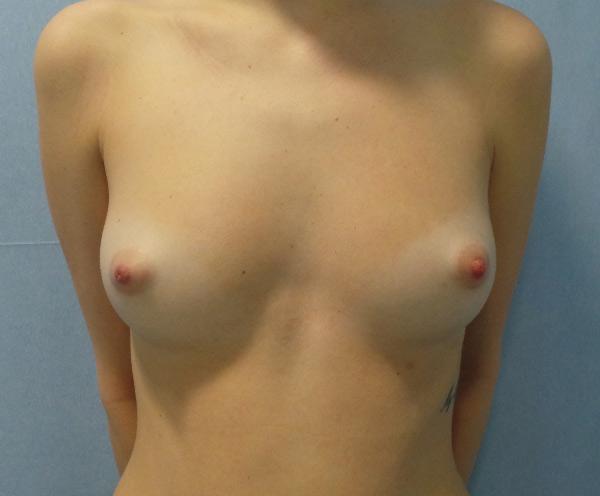 Before-mamoplastia