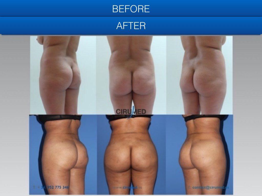aumento de gluteos antes y después