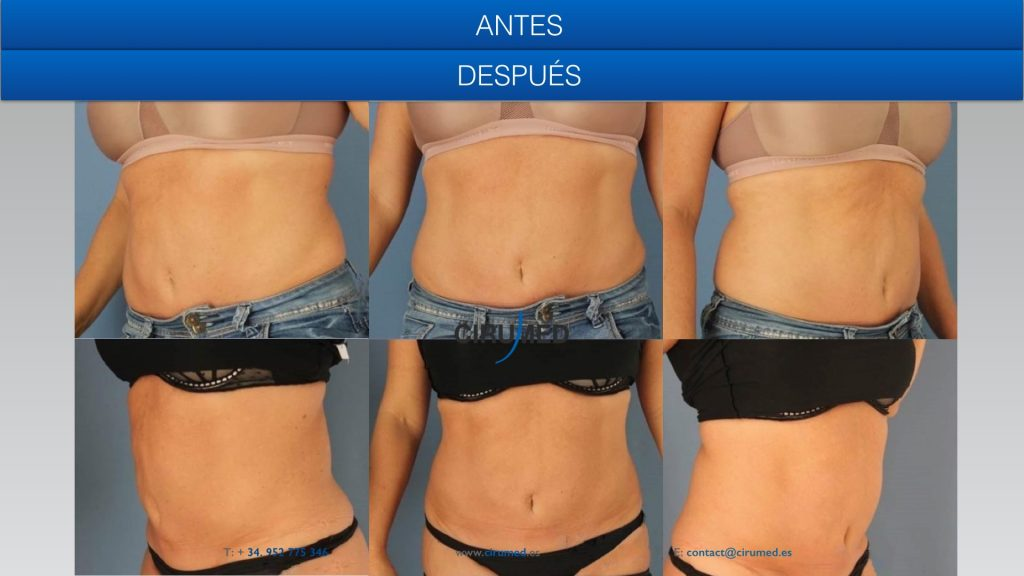 coolsculpting liposuccion