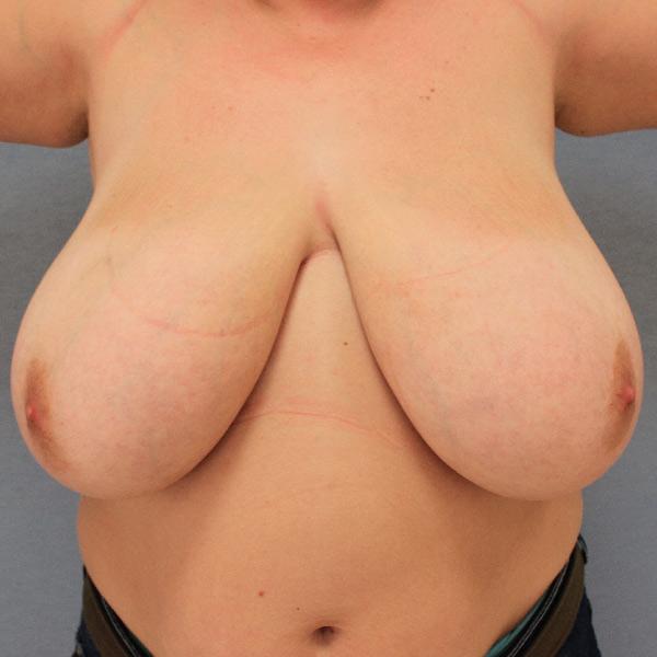 Before-mastopexia y reducción mamaria