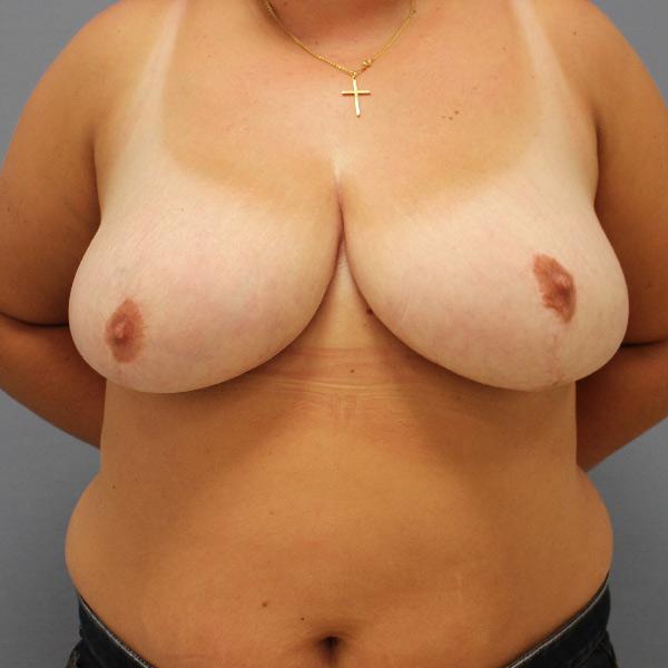 After-mastopexia y reducción mamaria