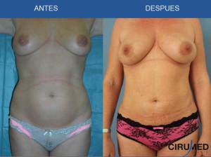 Aumento de mamas con transferencia de grasa