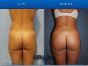 Aumento de glúteos brasileño con implantes en paciente delgada.