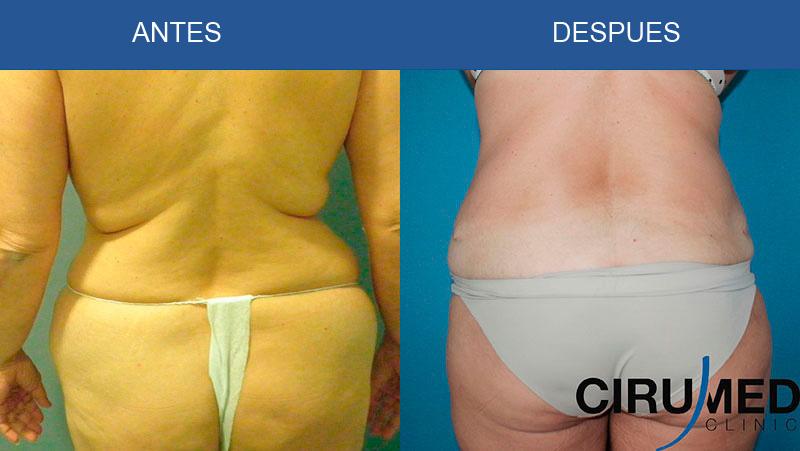Abdominoplastia con liposucción Agua-Jet/Laser