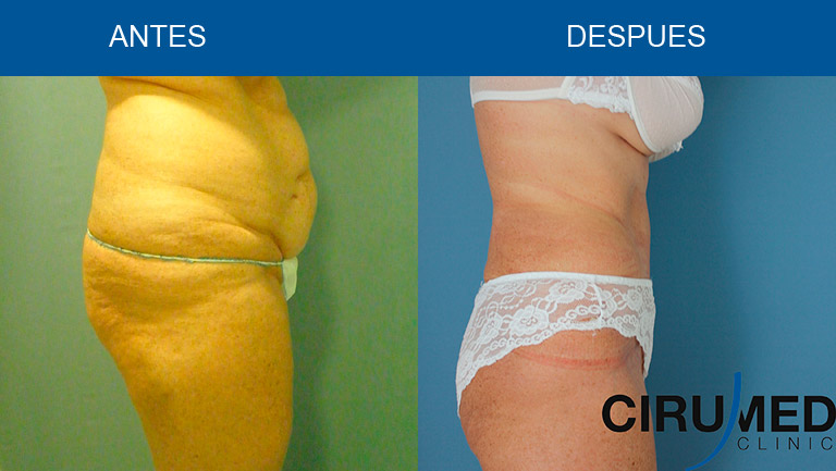 Abdominoplastia con Lipoescultura Aguajet y Lipolaser (Sistema BodyTite, Invasix)
