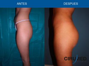 Aumento de glúteos brasileño con grasa en un paciente muy delgado