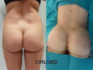 Caso 46: Aumento de glúteos compuesto utilizando grasa e implantes de silicona