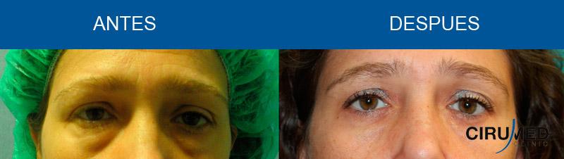 Elevación del párpado inferior (Blefaroplastia) con láser.