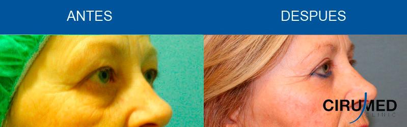 Cirugía de párpados inferior y superior (Blefaroplastia)