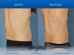 Coolsculpting: liposucción no quirúrgica