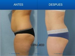 Liposucción combinada (liposucción BodyJet/laser) para una máxima remodelación corporal