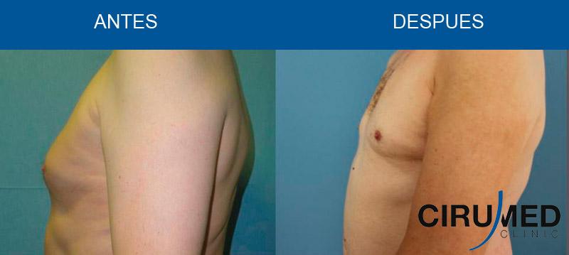 Corrección de Ginecomastia (reducción mamaria masculina) con liposucción BodyJet EVO.