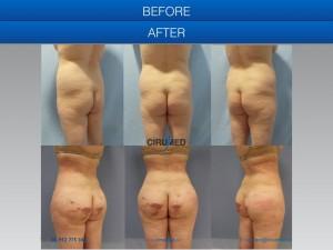 Modificación corporal gracias a una transferencia de grasa de gran volumen