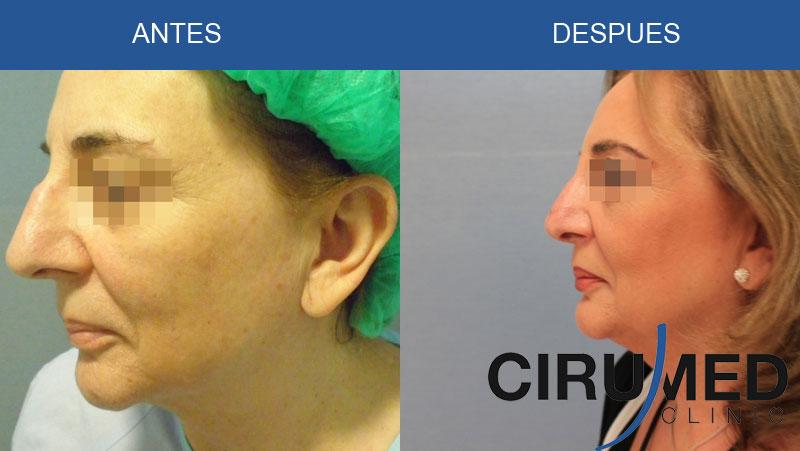 Rinoplastia (correcion de nariz) reparadora despues de traua nasal