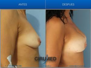 Aumento de mamas compuesto con grasa y silicona, para un levantamiento de pecho sin cicatrices