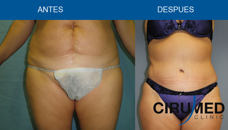 Abdominoplastia completa y liposucción láser