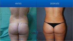Bodyjet EVO liposucción para dar forma al cuerpo