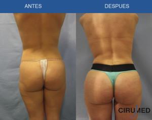Aumento de glúteos brasileño 400cc de injerto de grasa por cada lado.