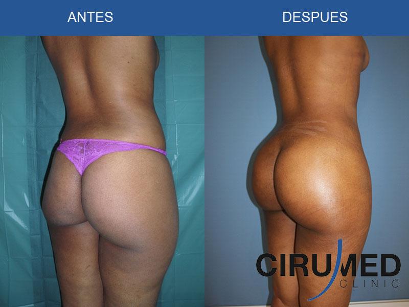 Aumento de glúteos brasileño con gran volumen de injertos de grasa con BodyJet EVO.