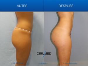 Aumento de glúteos compuesto, grasa más implante