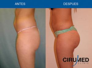 umento de glúteos brasileño combinado (grasa más implantes)