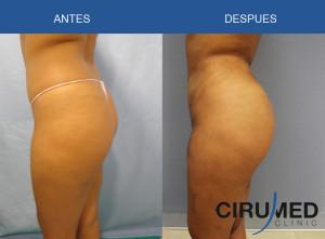 Aumento de glúteos brasileño, con injertos de grasa de 1200cc en cada lado.