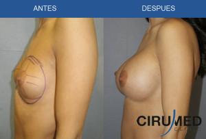 Aumento de mamas con implantes