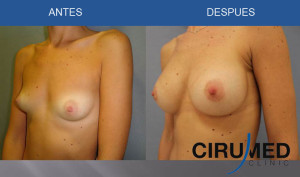 Aumento de mamas compuesto