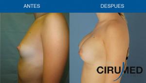 Aumento de mamas con implantes de gel cohesivo de silicona.