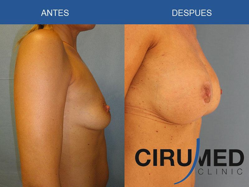 Aumento de mamas compuesto (implantes de silicona/ propia grasa del paciente)