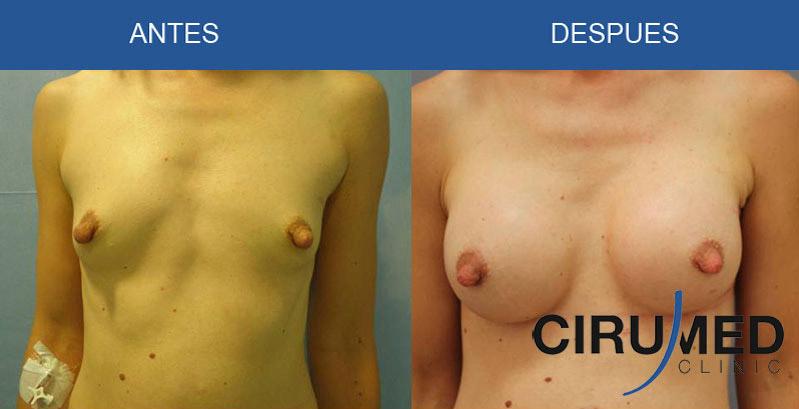 Aumento de mamas casos - con implantes de silicona