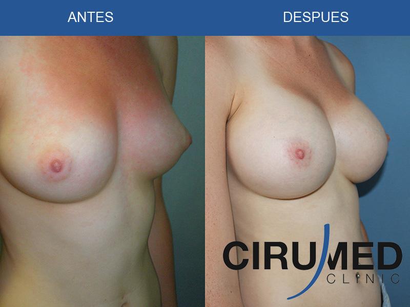 Aumento de mamas casos - implantes de silicona tipo Natrelle