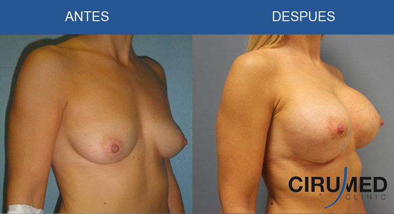 Aumento de mamas compuesto (implantes de silicona y modelación extra con micro injertos de grasa)