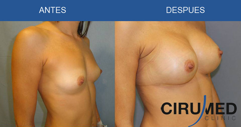 Aumento de mamas compuesto en combinación de grasa e implantes de silicona