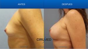 Aumento compuesto de senos usando implantes de silicona en combinación con injertos de grasa
