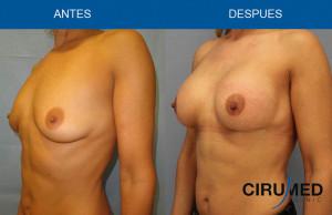 Aumento de mamas con implantes de gel cohesivo de silicona