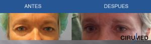 Cirugía de parpados (blefaroplastia superior)