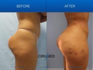 recambio de implante de glúteos