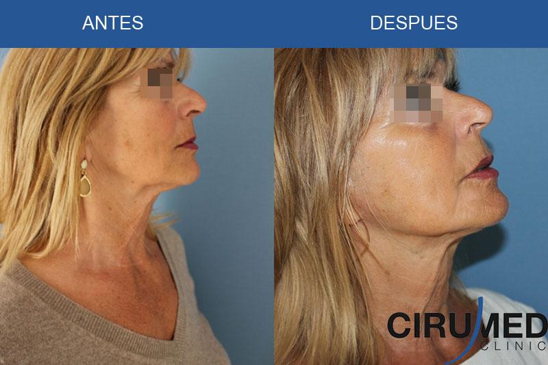 Lifing facial - rejuvecimiento facial