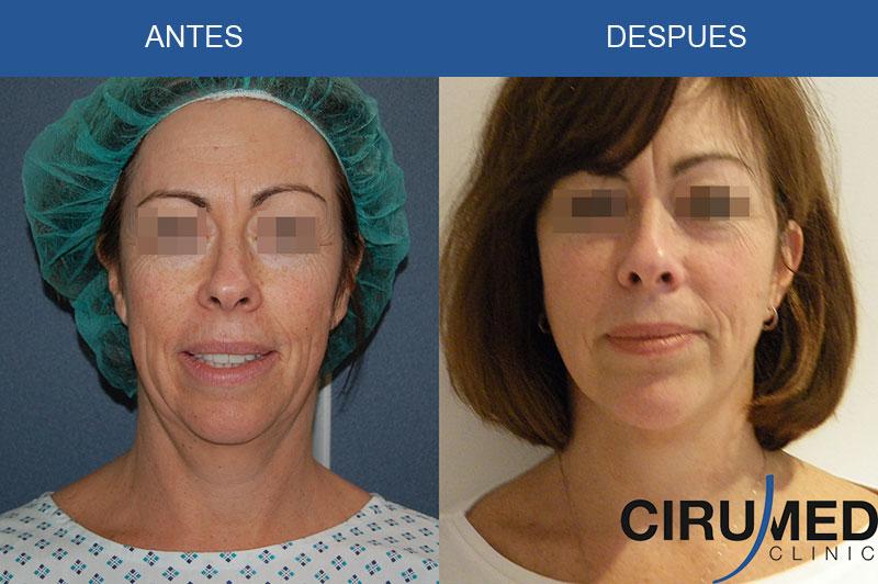 Lifting facial en combinación con implante de mentón
