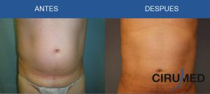 Cirugía plástica masculina: lipoescultura compuesta de abdomen y flancos