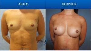 Aumento de mamas con 40 cc de grasa e implantes de gel de silicona de 300cc