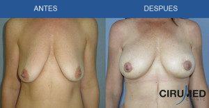 Aumento de mamas compuesto en pechos caídos, evitando cicatrices