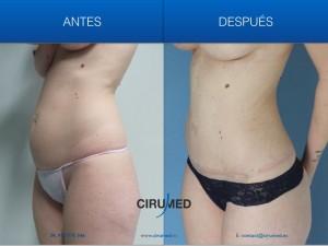 Combinación de aumento de mamas compuesto y abdominoplastia