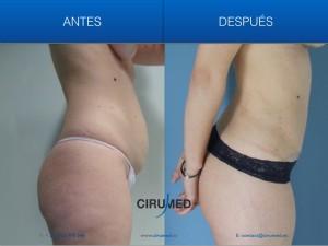 Cirugía tras embarazo - Combinación de aumento de mamas y abdominoplastia