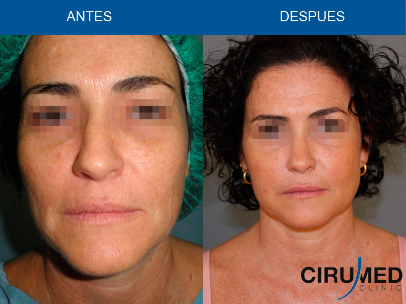 Lifting facial sin cicatrices