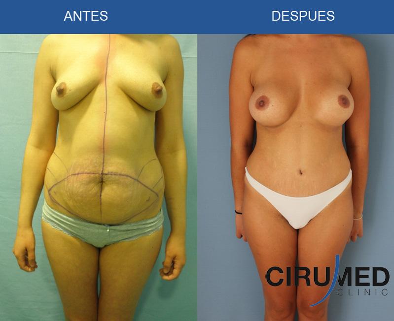 Aumento de mamas compuesto.